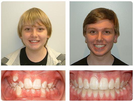 charlotte-teeth-straightening