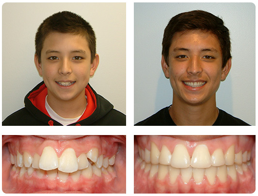 teen-braces-nc
