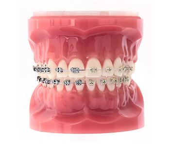 Teeth-Iconix-bracket-orthodontic