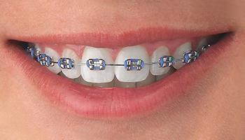 metal-braces-nc