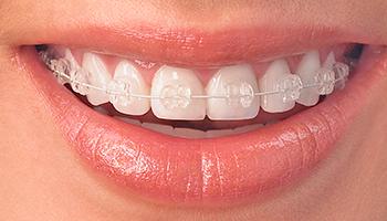 teeth-radiance-nc